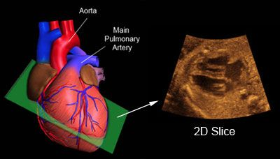 Fetal Echocardiography in Ghatkopar, Chembur, Kurla