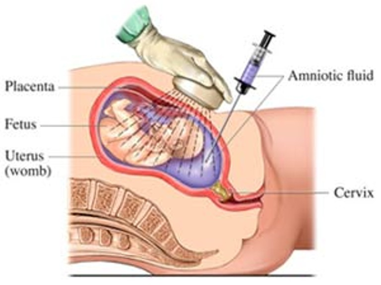 Invasive Fetal tests in Ghatkopar, Chembur, Kurla
